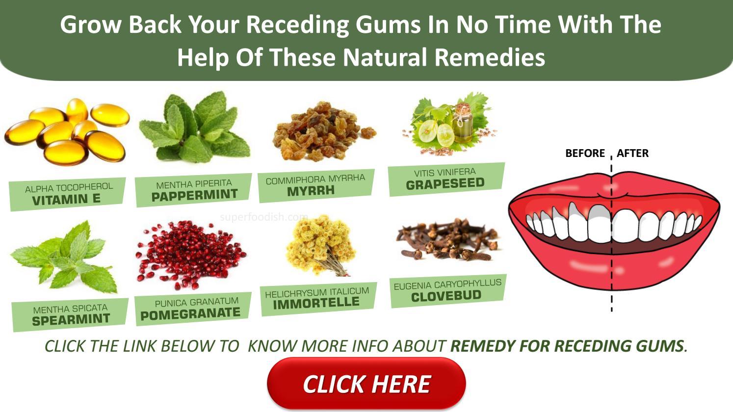 gum restoration receding gums