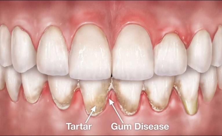 Receding Gums Causes
