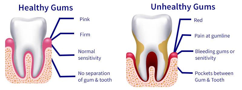 Signs of Receding gums