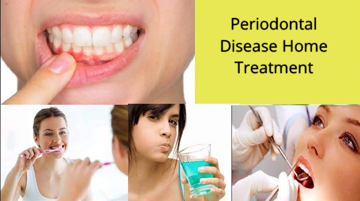 Home Treatment for Periodontitis