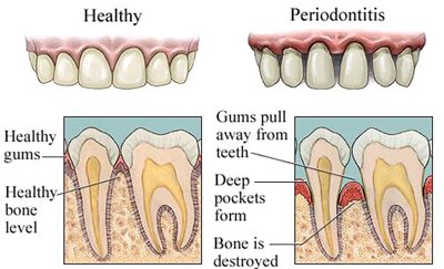 Signs of periodontitis