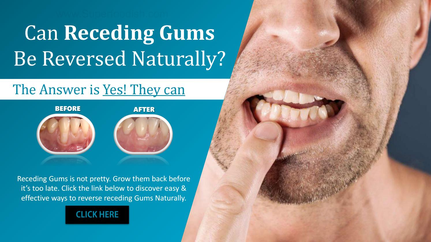 Can Gums Be Reversed Naturally