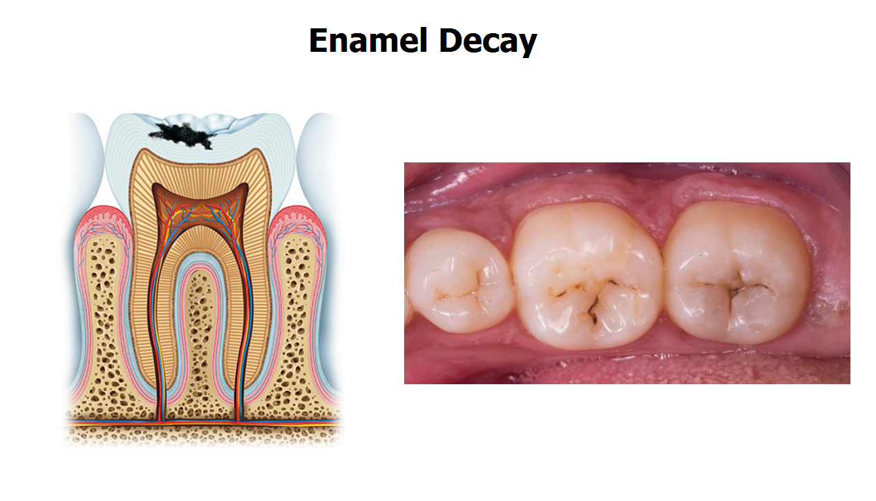 Infection from Tooth Decay