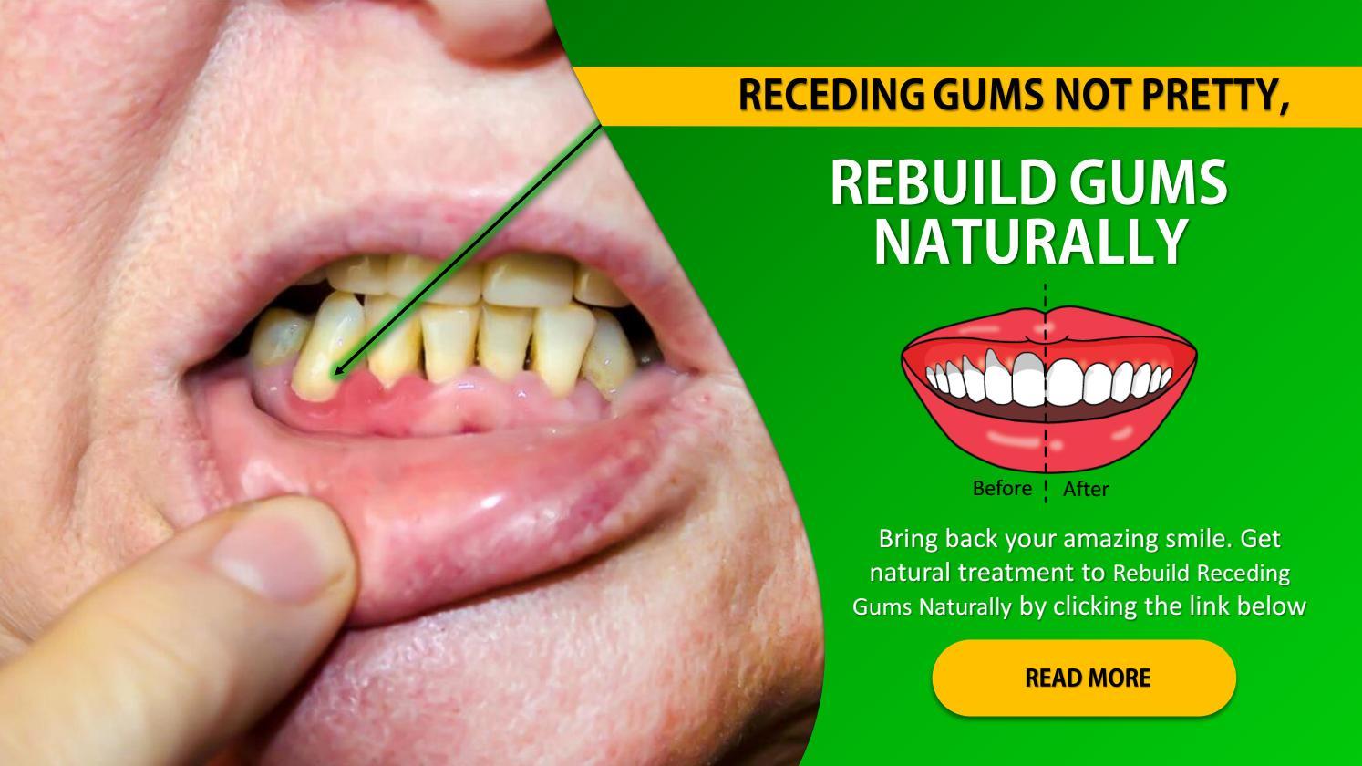 Rebuild Gums Naturally