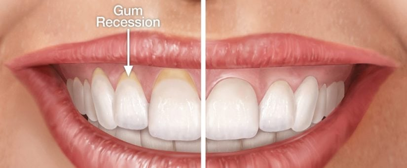 Reverse Early Gum Recession