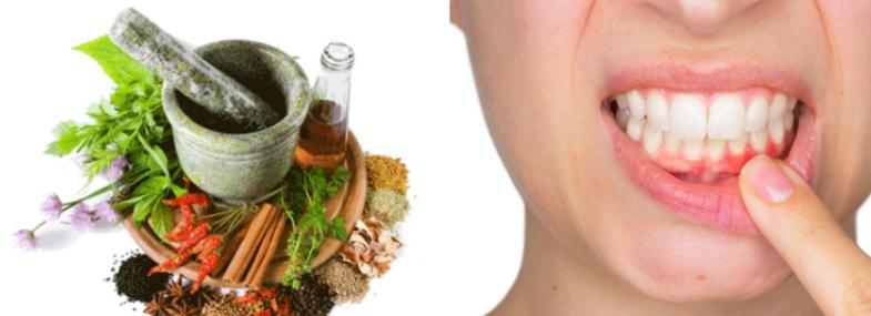 Remedies to Help Gums