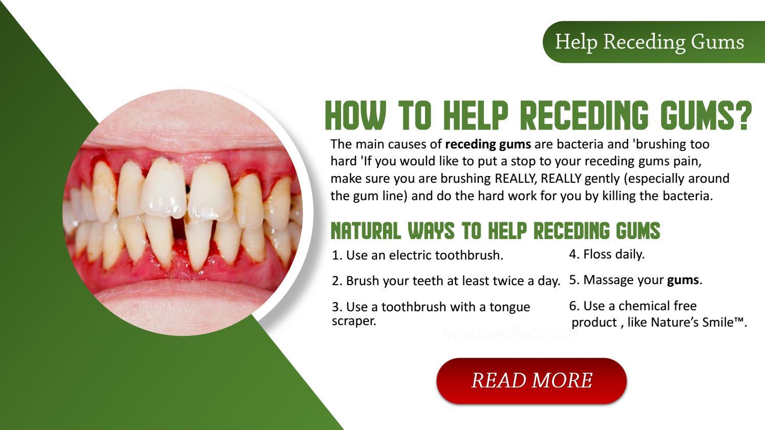 help for receding gums natural