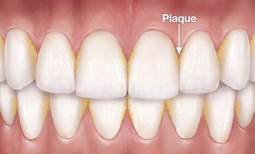 Plaque Inducing Gingivitis