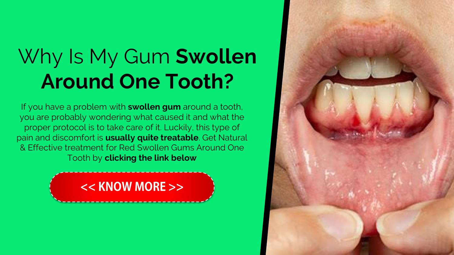 Why Is My Gum Swollen Around One Tooth