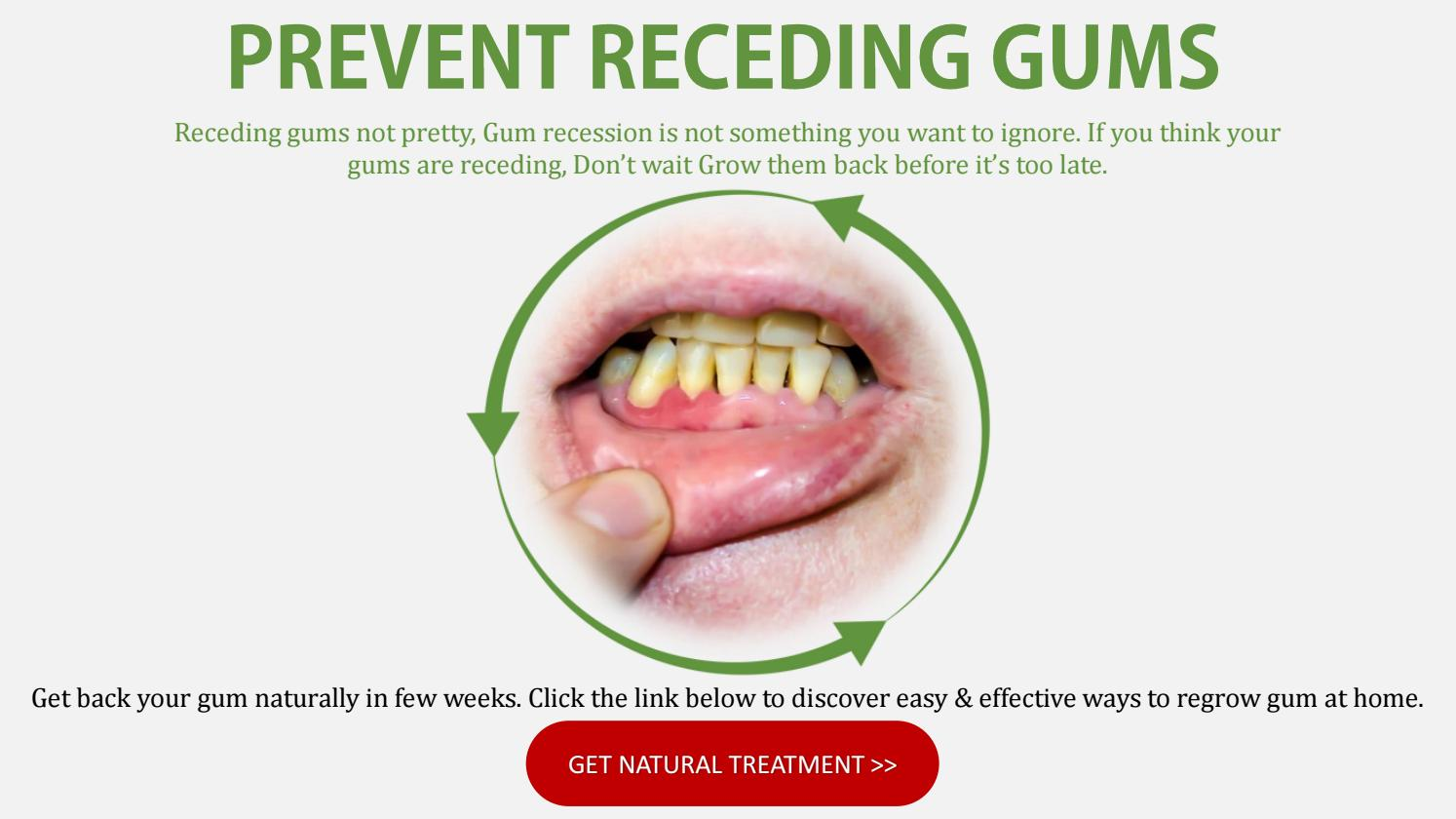 Natural Treatment To Prevent receding gums
