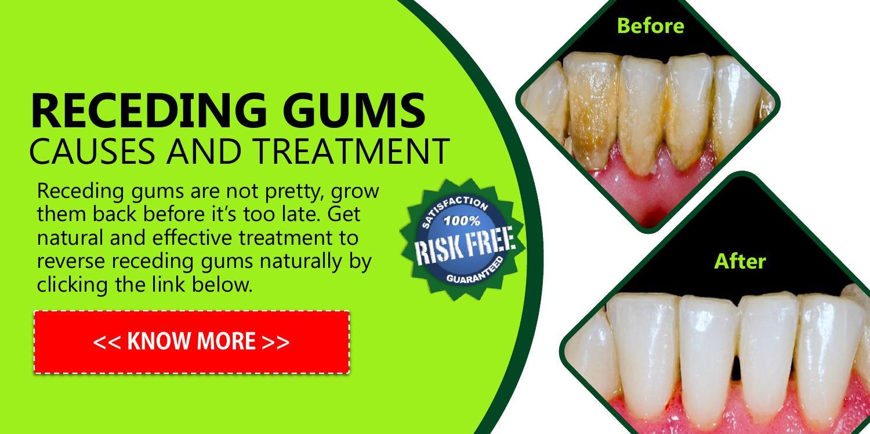 sore receding gums treatment