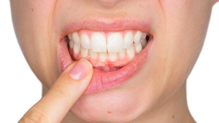 swollen gums home treatments